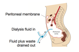 Peritoneal Dialysis Diagram